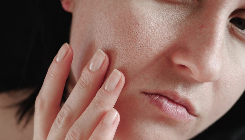 10 Different Ways you can minimize your Skin Pores