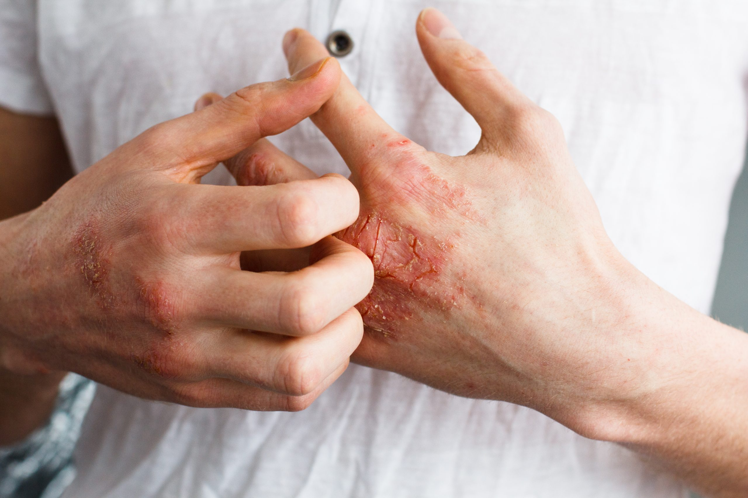 How to fight eczema in winters